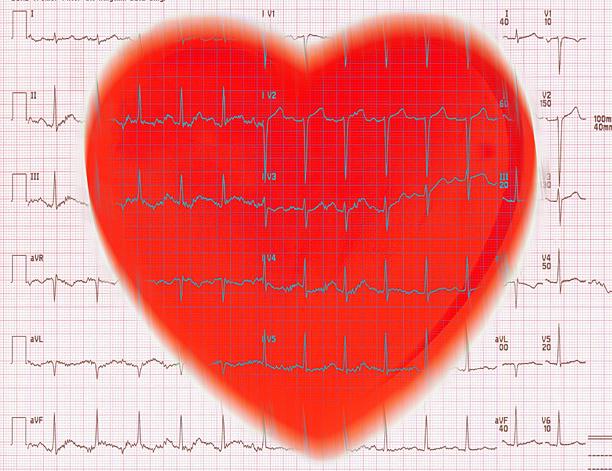 EKG & Red Heart