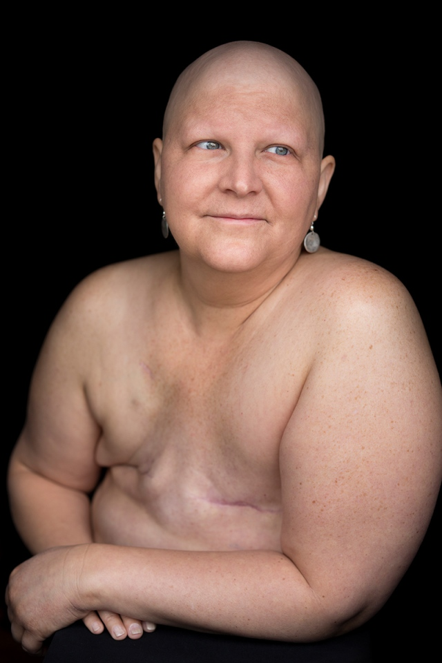 Facing Chemo - a photographic project